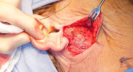 surgery opening infornt of ear